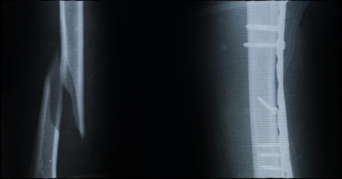 White Ward - The die is cast